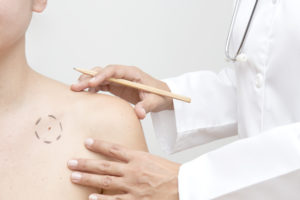 The Difference Between Pediatric And Adult Dermatology