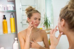 Skincare Routine for Acne-Prone Skin
