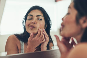 Best Treatments for Adult Acne